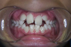 db_teethbefore